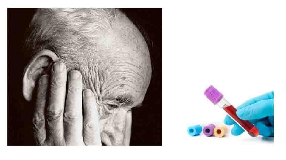 DEMENZA ALZHEIMER: CORRELAZIONE CON IL GRUPPO SANGUIGNO